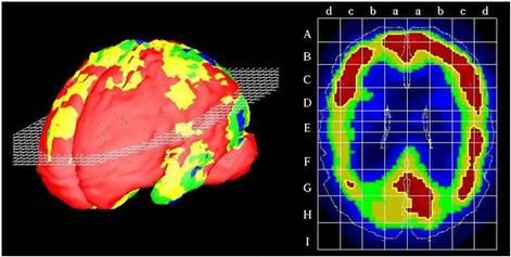 Ryc. Scyntygrafia mózgu